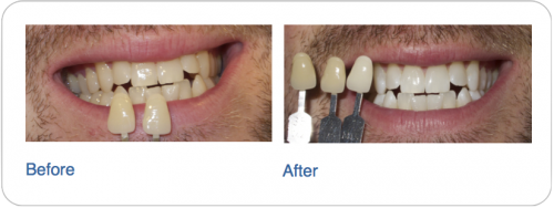 Teeth Whitening - Radiance Dental Hygiene